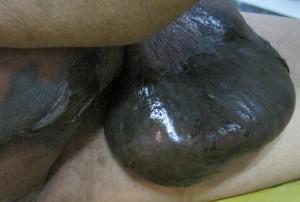 fourniers-gangrene-scrotum-back
