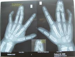 Complex Syndactyly X ray showing fusion of bones of fingers of hands