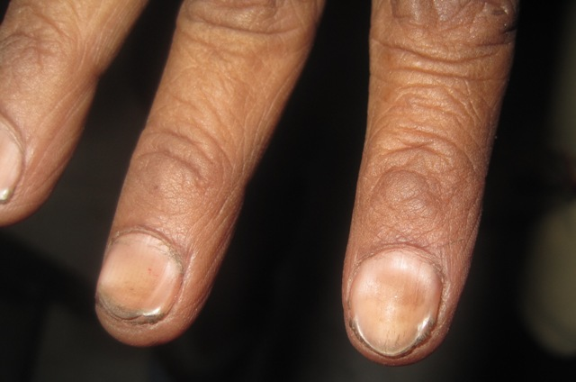 Understanding Nail Diseases And Disorders