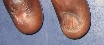 damaged eponychium of nailsEponychium