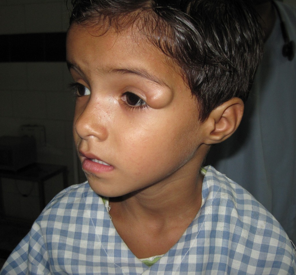 dermoid cyst on left eye near eye brow, periorbital cyst