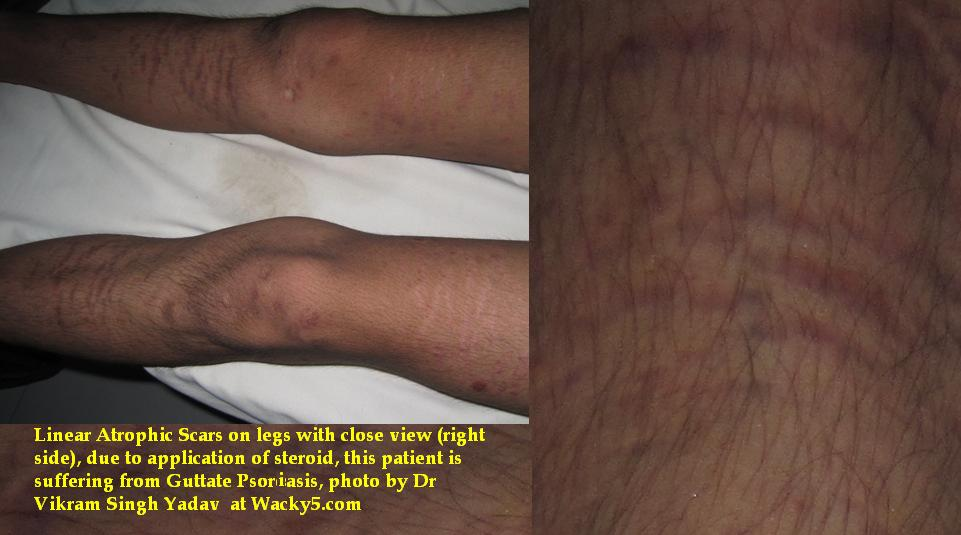 linear atrophic scars due to steroid application on psoriasis