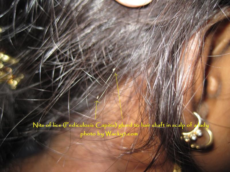 Nits in hairs of head- pediculosis capitis (head lice)