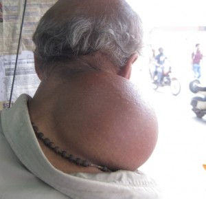 SUBCUTANEOUS LIPOMA OVER NECK AND SHOULDER DORSUM VIEW OF OLD MAN