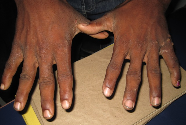 How To Treat Scabies At Your Home?