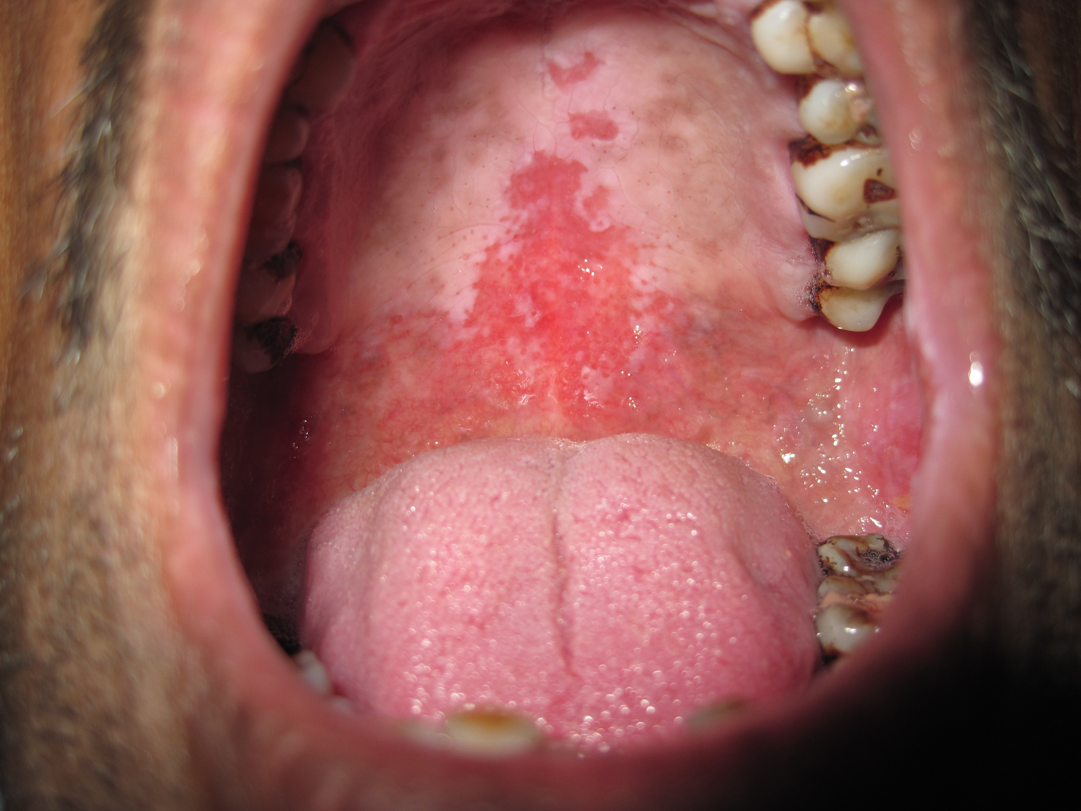 Pictures of Hard Palate Cancer http://wacky5.com/hard-palate-lesions-pic.html