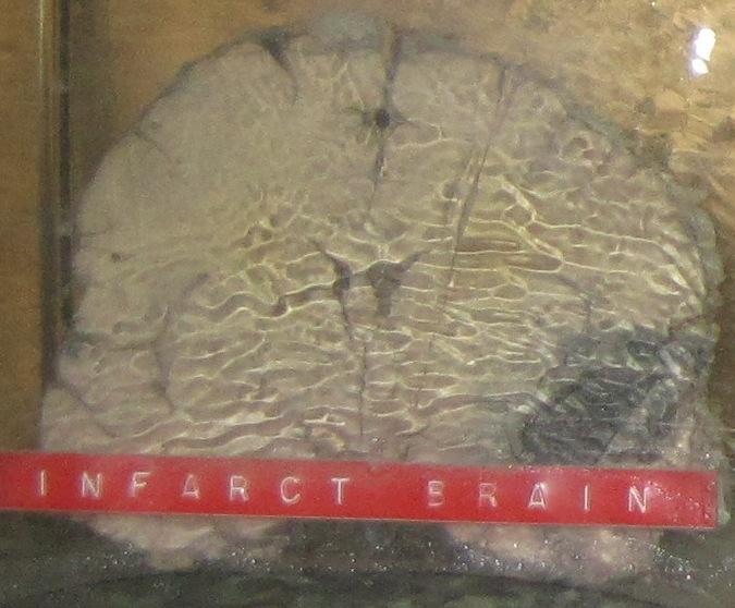 Infarct Brain