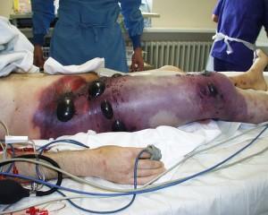 Gag gangrene infection